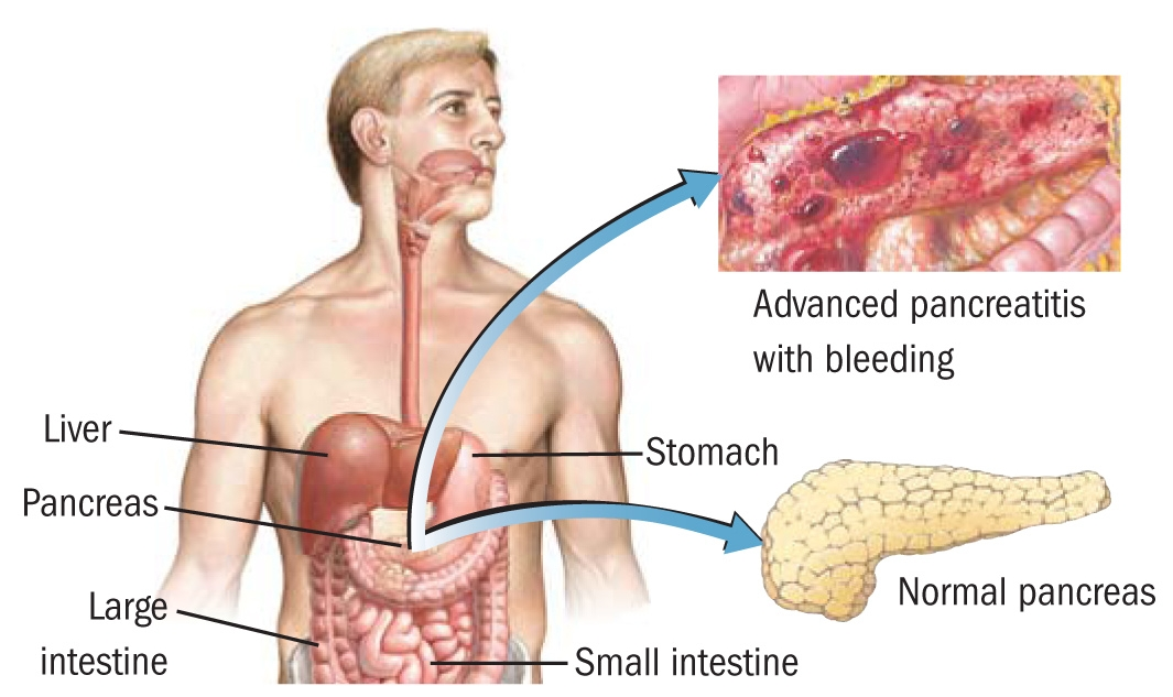 What Is Pancreatitis Defenderauto Info