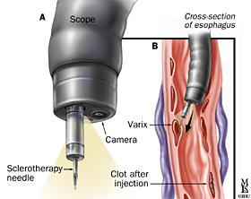complex asiatic din varicoză